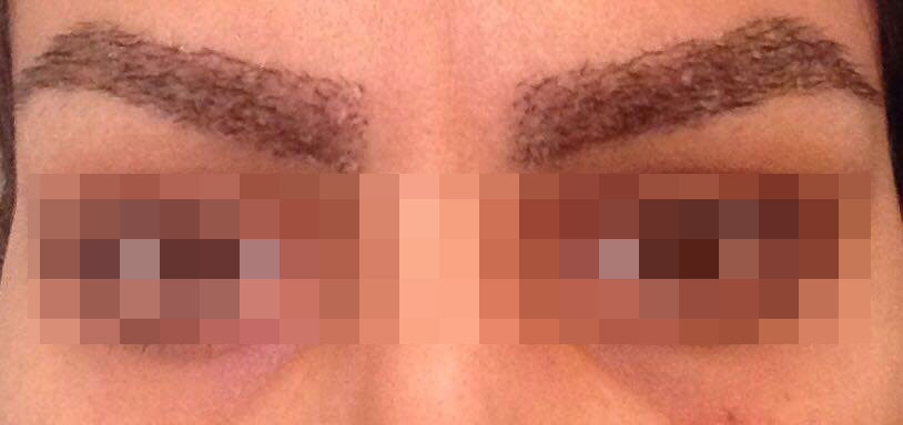 Eyebrow hair transplant stage 2